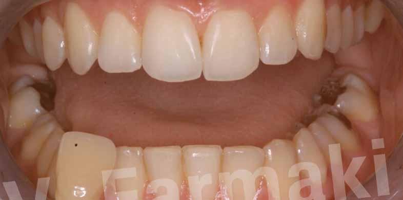 Λεύκανση Δοντιών Βασιλική Φαρμάκη