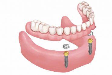 Οδοντικό Εμφύτευμα Οδοντίατρος Βασιλική Φαρμάκη
